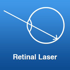 retinal-laser